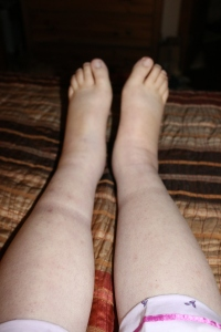 Fat feet and legs